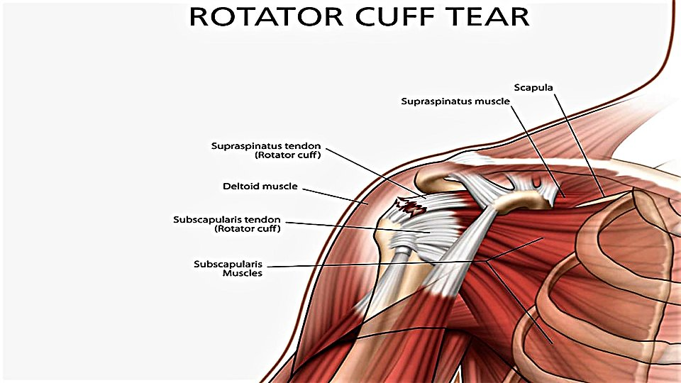 What To Do About A Rotator Cuff Injury